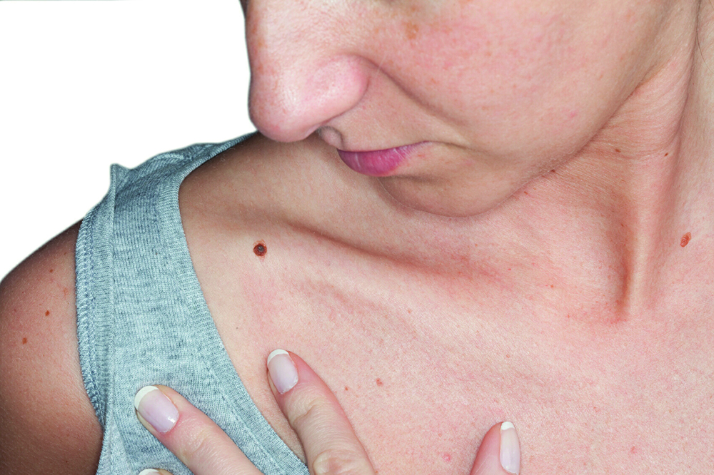 Online skin cancer tool aims to encourage people to seek early medical help